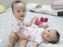 Hình ảnh ca phẫu thuật 2 bé Song Nhi và ý nghĩa của dấu tích xanh đỏ trên trán